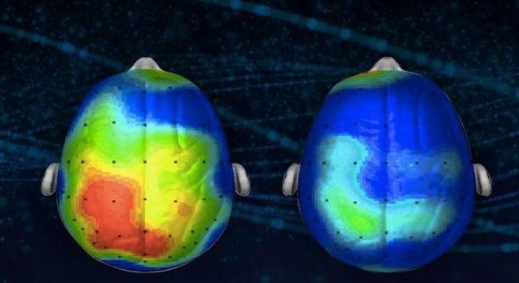 NeuroSciencePunch
